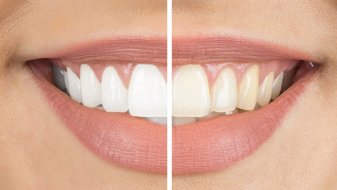 Dentes brancos pó branqueador dente branco saúde