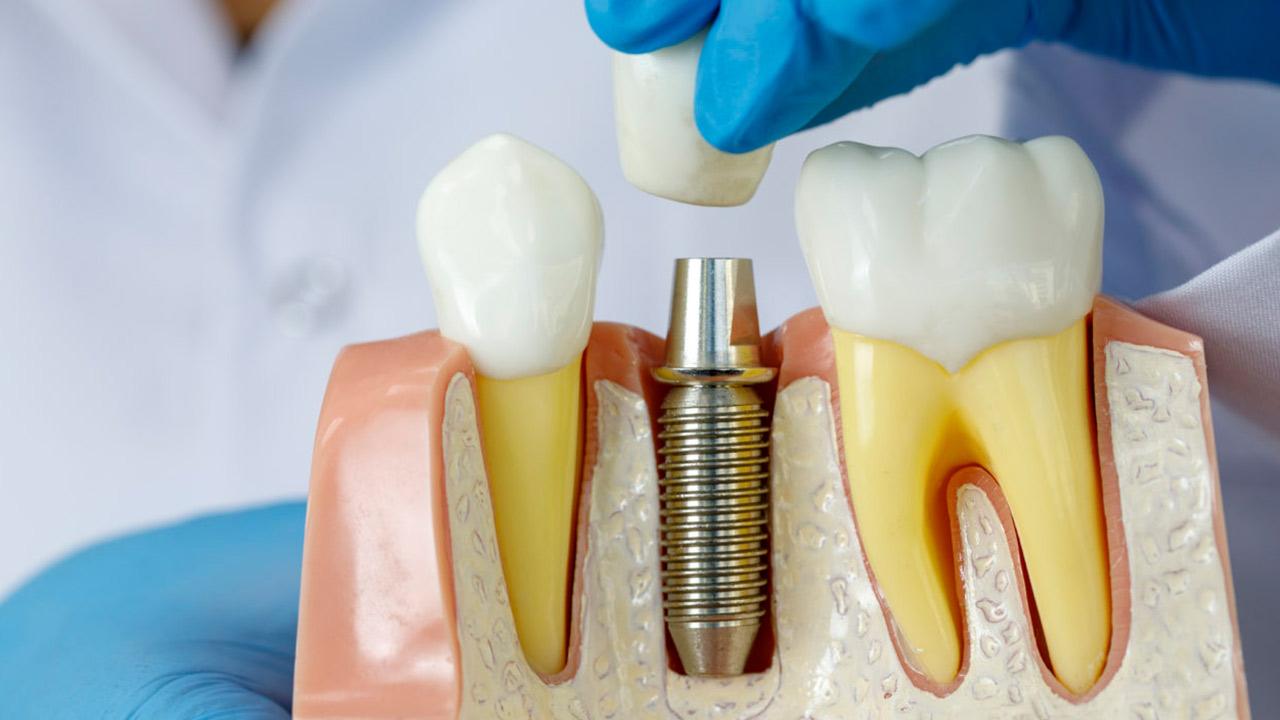 Descomplicando os Mini-implantes Ortodônticos
