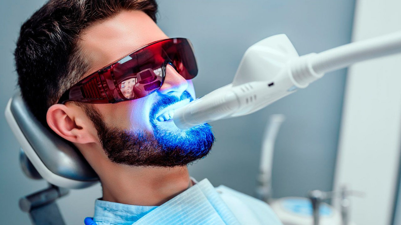 Os Segredos do Clareamento Dental